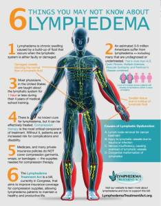 Lymphedema graphic